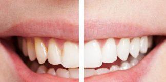 Wybielanie zębów – nowa, autorska metoda lekarzy z Katowic