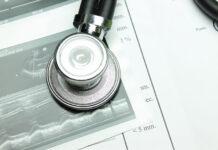 Echokardiografia, kiedy należy wykonać badanie serca